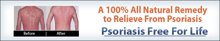 Psoriasis Free For Life™