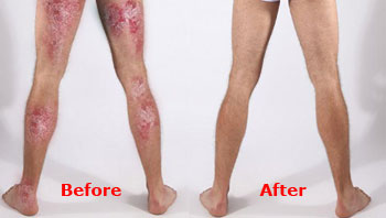 psoriasis free for life ingredients